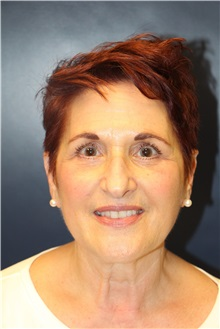 Eyelid Surgery After Photo by Laurence Glickman, MD, MSc, FRCS(c),  FACS; Garden City, NY - Case 30221