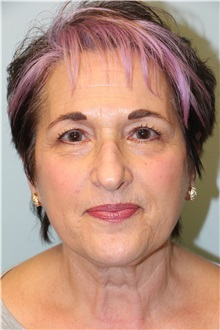 Eyelid Surgery Before Photo by Laurence Glickman, MD, MSc, FRCS(c),  FACS; Garden City, NY - Case 30221