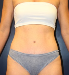 Tummy Tuck After Photo by Laurence Glickman, MD, MSc, FRCS(c),  FACS; Garden City, NY - Case 30223