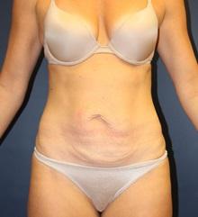 Tummy Tuck Before Photo by Laurence Glickman, MD, MSc, FRCS(c),  FACS; Garden City, NY - Case 30223