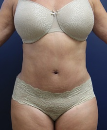 Tummy Tuck After Photo by Laurence Glickman, MD, MSc, FRCS(c),  FACS; Garden City, NY - Case 30225