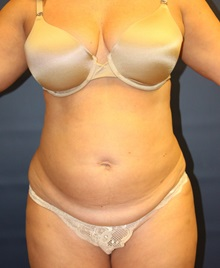 Tummy Tuck Before Photo by Laurence Glickman, MD, MSc, FRCS(c),  FACS; Garden City, NY - Case 30225