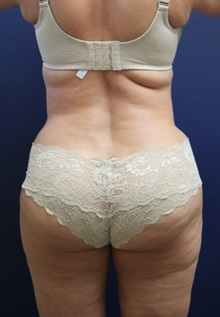 Liposuction After Photo by Laurence Glickman, MD, MSc, FRCS(c),  FACS; Garden City, NY - Case 30226