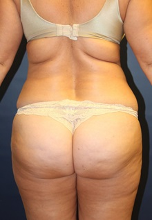 Liposuction Before Photo by Laurence Glickman, MD, MSc, FRCS(c),  FACS; Garden City, NY - Case 30226