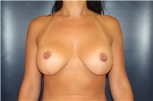 Breast Lift After Photo by Laurence Glickman, MD, MSc, FRCS(c),  FACS; Garden City, NY - Case 30229