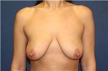 Breast Lift Before Photo by Laurence Glickman, MD, MSc, FRCS(c),  FACS; Garden City, NY - Case 30229