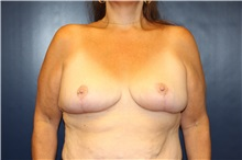 Breast Reduction After Photo by Laurence Glickman, MD, MSc, FRCS(c),  FACS; Garden City, NY - Case 30230