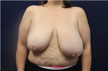 Breast Reduction Before Photo by Laurence Glickman, MD, MSc, FRCS(c),  FACS; Garden City, NY - Case 30230