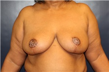 Breast Reduction After Photo by Laurence Glickman, MD, MSc, FRCS(c),  FACS; Garden City, NY - Case 30231
