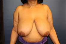 Breast Reduction Before Photo by Laurence Glickman, MD, MSc, FRCS(c),  FACS; Garden City, NY - Case 30231
