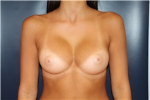 Breast Augmentation After Photo by Laurence Glickman, MD, MSc, FRCS(c),  FACS; Garden City, NY - Case 30232