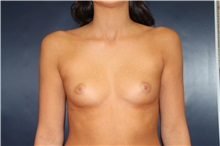 Breast Augmentation Before Photo by Laurence Glickman, MD, MSc, FRCS(c),  FACS; Garden City, NY - Case 30232