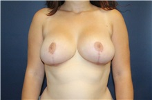 Breast Reduction After Photo by Laurence Glickman, MD, MSc, FRCS(c),  FACS; Garden City, NY - Case 30233