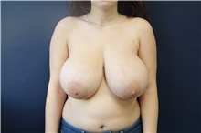 Breast Reduction Before Photo by Laurence Glickman, MD, MSc, FRCS(c),  FACS; Garden City, NY - Case 30233
