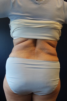 Liposuction After Photo by Laurence Glickman, MD, MSc, FRCS(c),  FACS; Garden City, NY - Case 30235