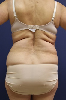 Liposuction Before Photo by Laurence Glickman, MD, MSc, FRCS(c),  FACS; Garden City, NY - Case 30235