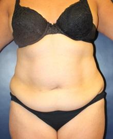 Tummy Tuck Before Photo by Laurence Glickman, MD, MSc, FRCS(c),  FACS; Garden City, NY - Case 30239