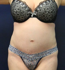 Tummy Tuck After Photo by Laurence Glickman, MD, MSc, FRCS(c),  FACS; Garden City, NY - Case 30241