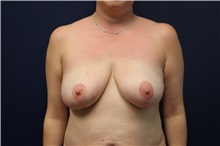Breast Lift Before Photo by Laurence Glickman, MD, MSc, FRCS(c),  FACS; Garden City, NY - Case 30242