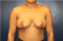 Breast Lift After Photo by Laurence Glickman, MD, MSc, FRCS(c),  FACS; Garden City, NY - Case 30243