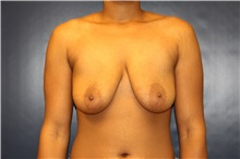 Breast Lift Before Photo by Laurence Glickman, MD, MSc, FRCS(c),  FACS; Garden City, NY - Case 30243