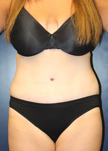 Tummy Tuck After Photo by Laurence Glickman, MD, MSc, FRCS(c),  FACS; Garden City, NY - Case 30244
