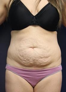 Tummy Tuck Before Photo by Laurence Glickman, MD, MSc, FRCS(c),  FACS; Garden City, NY - Case 30244