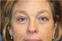 Eyelid Surgery After Photo by Laurence Glickman, MD, MSc, FRCS(c),  FACS; Garden City, NY - Case 30245