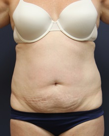 Tummy Tuck Before and After Photos | American Society of