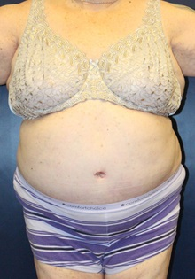 Tummy Tuck After Photo by Laurence Glickman, MD, MSc, FRCS(c),  FACS; Garden City, NY - Case 30248