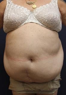 Tummy Tuck Before Photo by Laurence Glickman, MD, MSc, FRCS(c),  FACS; Garden City, NY - Case 30248