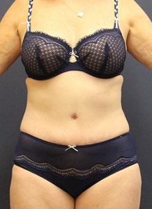 Tummy Tuck After Photo by Laurence Glickman, MD, MSc, FRCS(c),  FACS; Garden City, NY - Case 30249