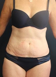 Tummy Tuck Before Photo by Laurence Glickman, MD, MSc, FRCS(c),  FACS; Garden City, NY - Case 30249