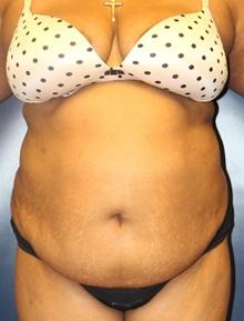 Tummy Tuck Before Photo by Laurence Glickman, MD, MSc, FRCS(c),  FACS; Garden City, NY - Case 30250