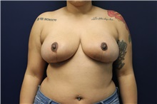 Breast Reduction After Photo by Laurence Glickman, MD, MSc, FRCS(c),  FACS; Garden City, NY - Case 30254