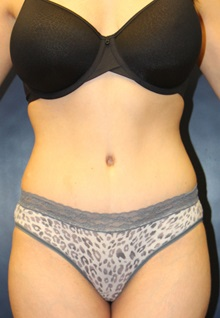 Tummy Tuck After Photo by Laurence Glickman, MD, MSc, FRCS(c),  FACS; Garden City, NY - Case 30259