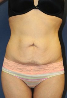 Tummy Tuck Before Photo by Laurence Glickman, MD, MSc, FRCS(c),  FACS; Garden City, NY - Case 30259