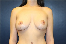 Breast Lift After Photo by Laurence Glickman, MD, MSc, FRCS(c),  FACS; Garden City, NY - Case 30260