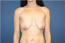 Breast Lift Before Photo by Laurence Glickman, MD, MSc, FRCS(c),  FACS; Garden City, NY - Case 30260