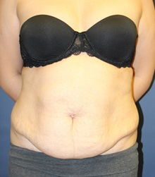 Tummy Tuck Before Photo by Laurence Glickman, MD, MSc, FRCS(c),  FACS; Garden City, NY - Case 30261