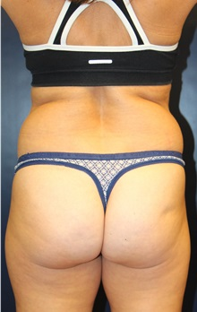 Liposuction Before Photo by Laurence Glickman, MD, MSc, FRCS(c),  FACS; Garden City, NY - Case 30263