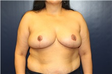 Breast Reduction After Photo by Laurence Glickman, MD, MSc, FRCS(c),  FACS; Garden City, NY - Case 30264