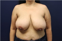 Breast Reduction Before Photo by Laurence Glickman, MD, MSc, FRCS(c),  FACS; Garden City, NY - Case 30264