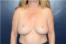 Breast Reduction After Photo by Laurence Glickman, MD, MSc, FRCS(c),  FACS; Garden City, NY - Case 30265