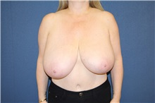 Breast Reduction Before Photo by Laurence Glickman, MD, MSc, FRCS(c),  FACS; Garden City, NY - Case 30265