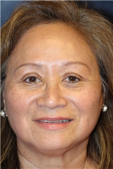 Eyelid Surgery After Photo by Laurence Glickman, MD, MSc, FRCS(c),  FACS; Garden City, NY - Case 30272