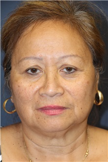 Eyelid Surgery Before Photo by Laurence Glickman, MD, MSc, FRCS(c),  FACS; Garden City, NY - Case 30272