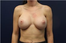 Breast Augmentation After Photo by Laurence Glickman, MD, MSc, FRCS(c),  FACS; Garden City, NY - Case 30273