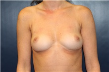 Breast Augmentation Before Photo by Laurence Glickman, MD, MSc, FRCS(c),  FACS; Garden City, NY - Case 30273