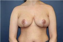 Breast Reduction After Photo by Laurence Glickman, MD, MSc, FRCS(c),  FACS; Garden City, NY - Case 30274